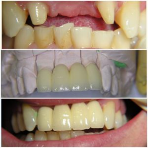 Pasang Gigi Palsu Di Palembang