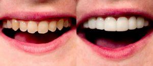 veneer gigi palembang